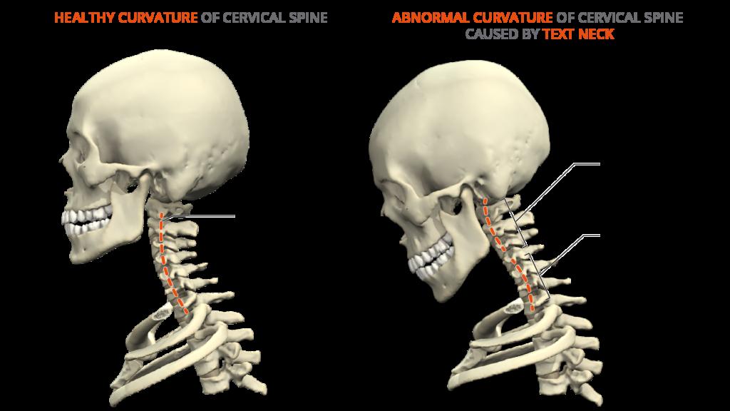 text neck - healthy neck - comparison - spine - anatomy