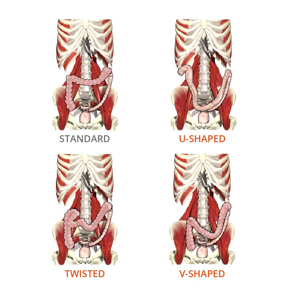 transverse colon anatomical variation - Primal Pictures