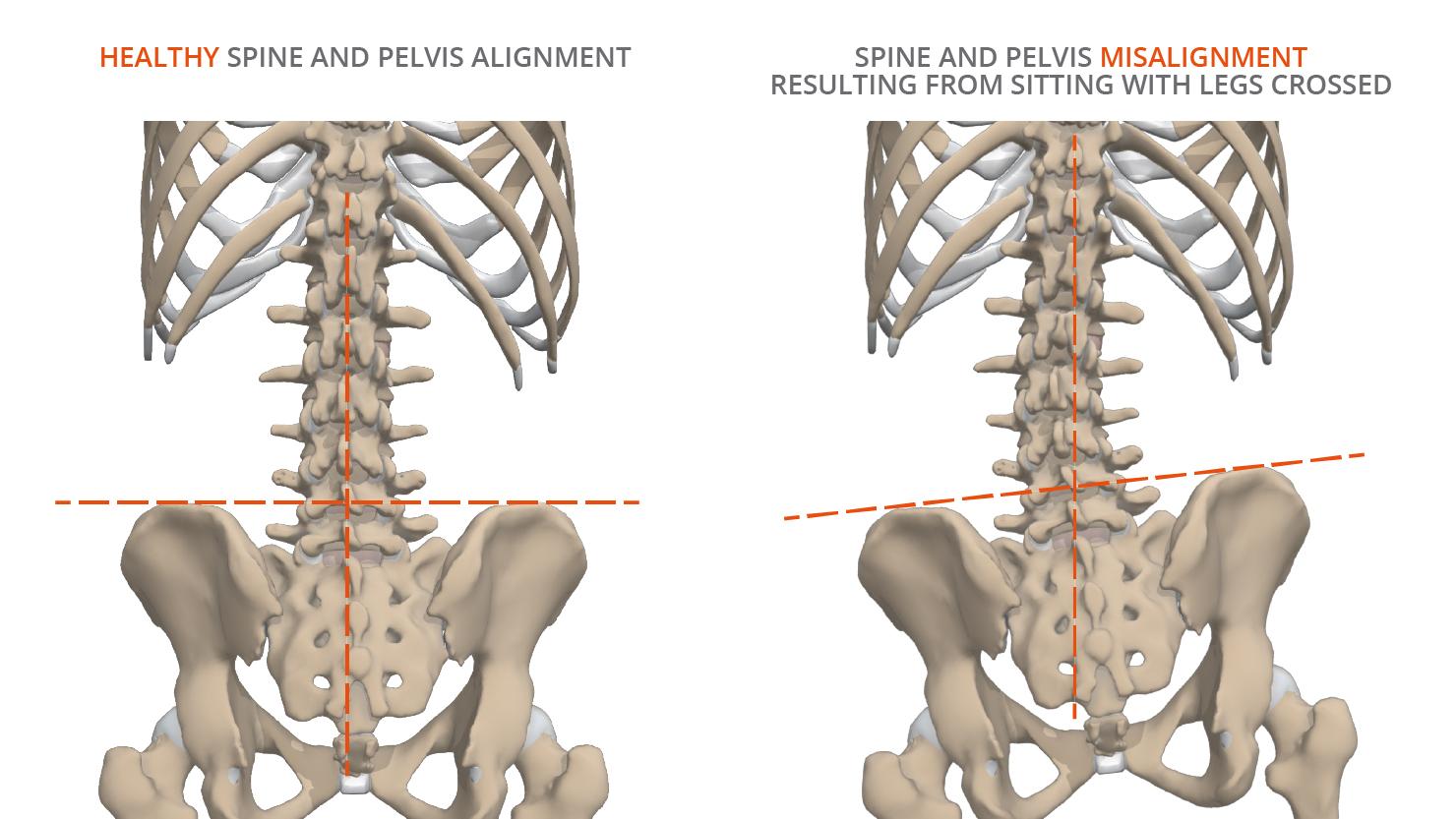 pelvis - spine - misalignment - alignment - anatomy - cross-legged - legs - crossed - Primal Pictures